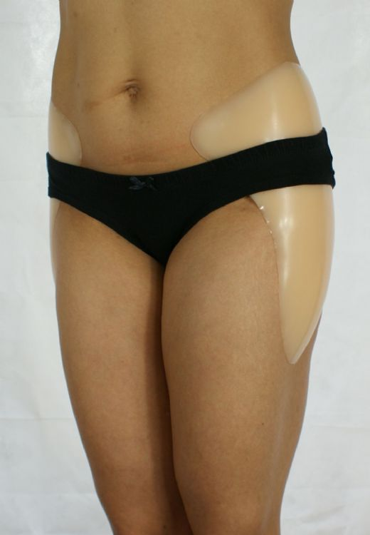 Large Silicone Hip Enhancers